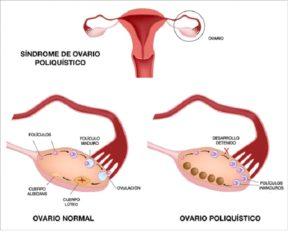imagen demostrativa de la formacion de ovarios poliquisticos