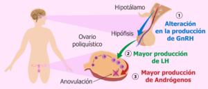 - desorden hipotalámico como causante del sop 300x128
